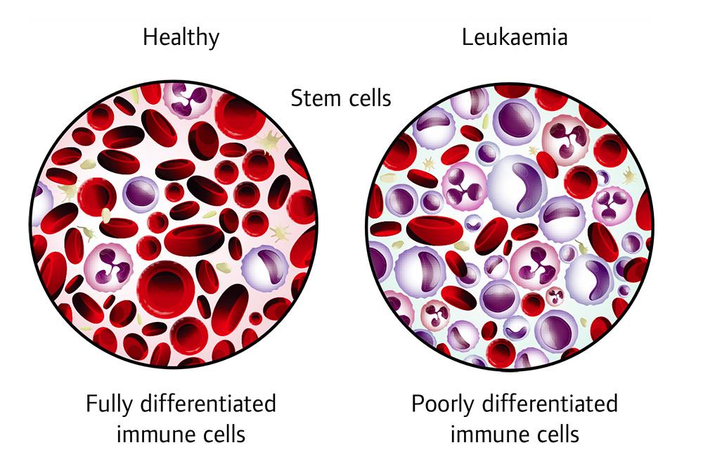 leukaemia Fig1